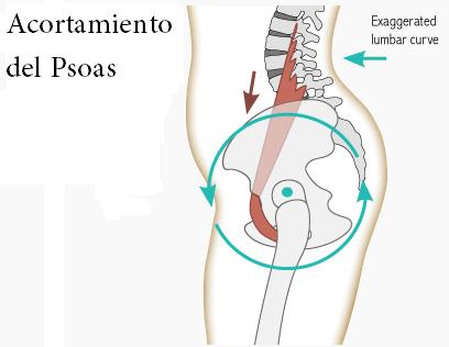 lesion en psoas iliaco
