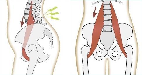 Psoas y dolor lumbar - www.medspine.es