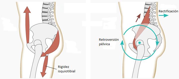 Cómo afectan los isquiotibiales a tu espalda? - www.medspine.es