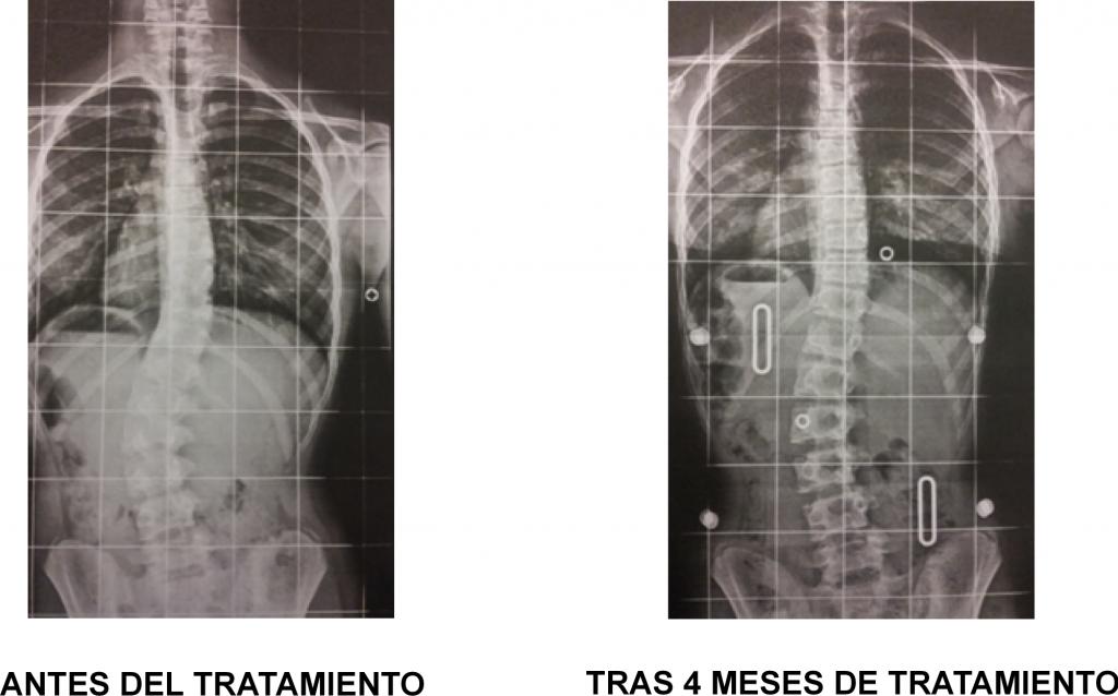 Antes y despues tratamiento