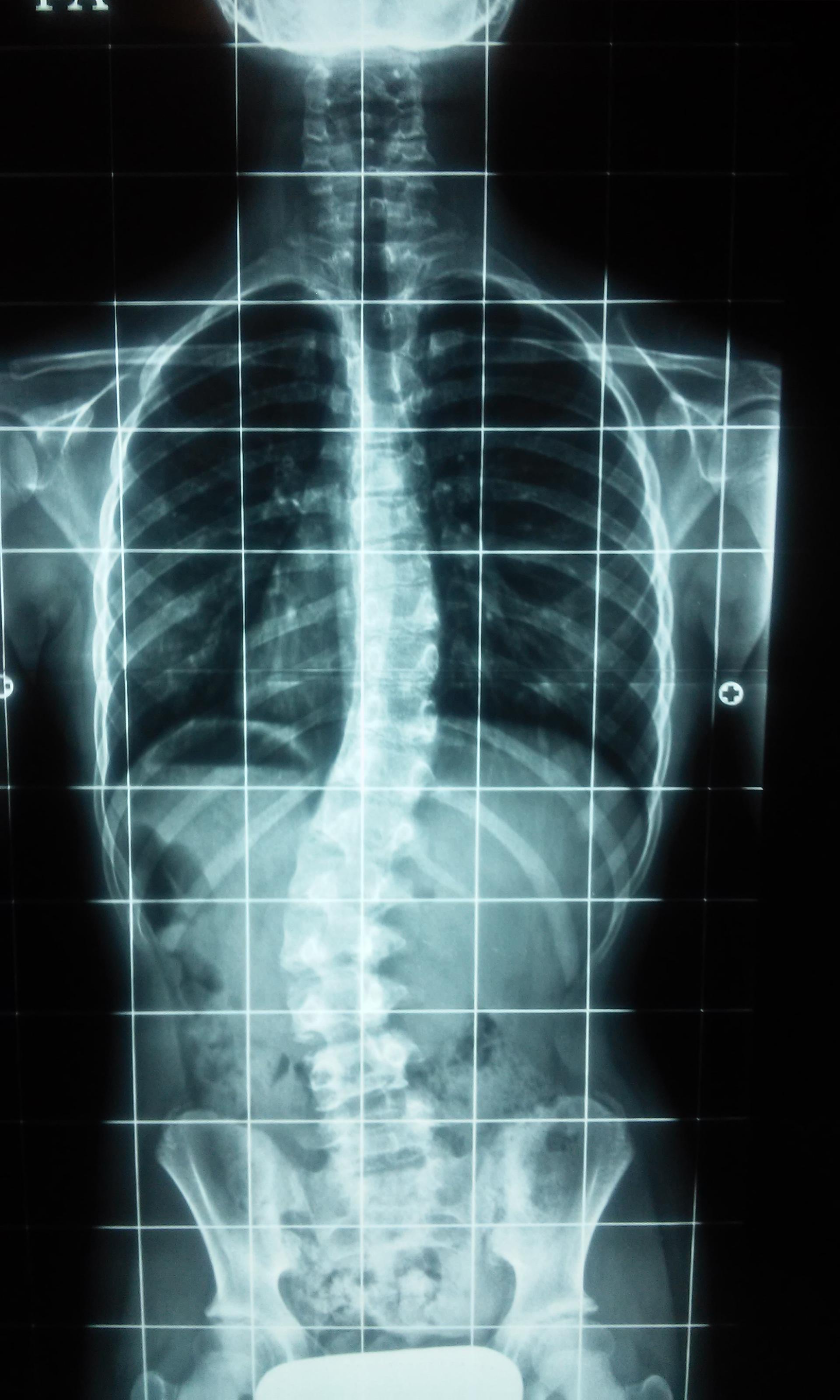 El vídeo del ejercicio para la espalda a la escoliosis para los niños del vídeo