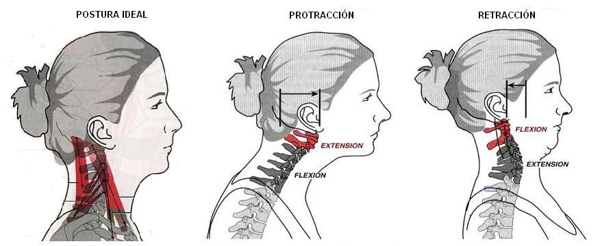 Dolor de cabeza postural