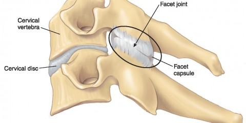 Dolor lumbar crónico o síndrome facetario