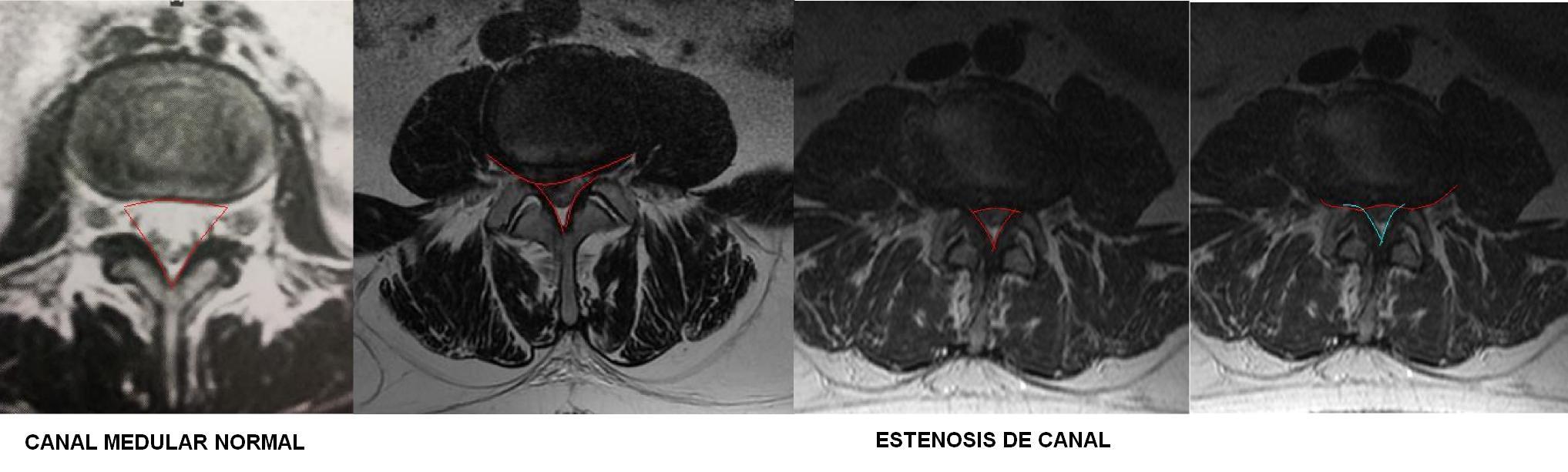estenosis de canal