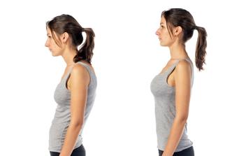Postura típica hipercifosis