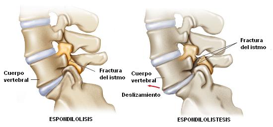 Espondilolistesis y espondilolisis