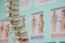 Rehabilitación de la cirugía de espalda