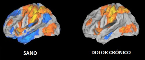 Neuroplasticidad sistema nervioso